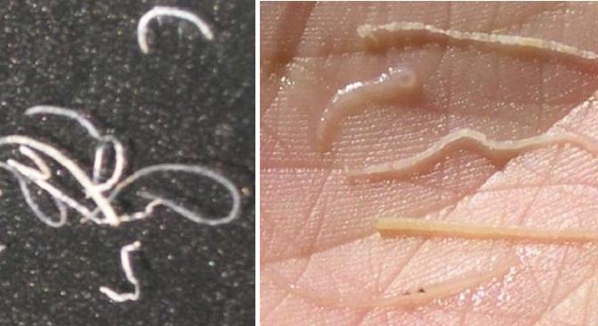 Kỹ thuật phòng trị bệnh phân trắng trên tôm nuôi